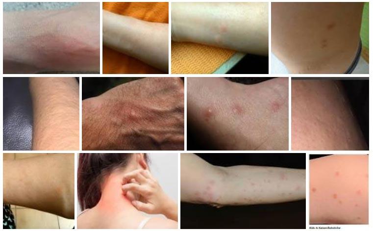 Kraetze-symptome-bildersuche-google