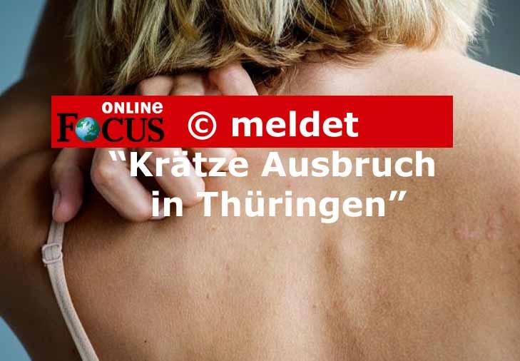 Focus-meldet-Krätzefälle in Thüringen ansteckung und Ausbruch Kinder Krätze