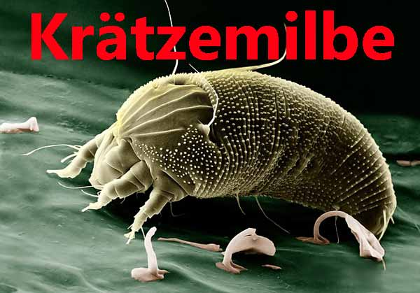 Krätze Aussehen Milben Kretze erkennen und behandeln
